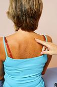 Псориаз, заболевание кожи, что такое псориаз, криотерапия в лечении псориаза